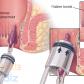 Hemoroid Nasıl Geçer?